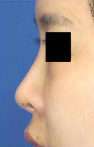 銀座S美容・形成外科クリニックの他院修正の鼻中隔延長術・鼻プロテーゼ・耳介軟骨移植の症例写真(ビフォー)