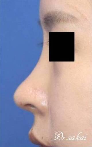 銀座S美容・形成外科クリニックの他院修正の鼻中隔延長術・鼻プロテーゼ・耳介軟骨移植の症例写真(アフター)