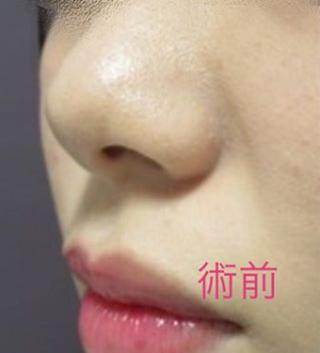新宿TAクリニックの鼻尖縮小術+4Dノーズの症例写真(ビフォー)