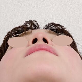 A CLINIC(エークリニック)銀座院の施術直後からツンとした鼻先へ【ジャスミンノーズ/鼻先縮小術】の症例写真(ビフォー)