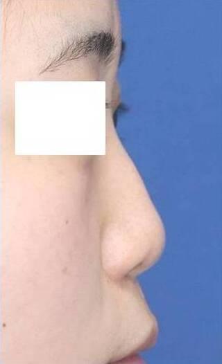 銀座S美容・形成外科クリニックの鼻尖縮小(ストラットⅢ法)・鼻プロテーゼ・耳介軟骨移植の症例写真(ビフォー)