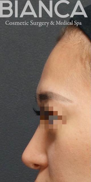BIANCA銀座のSライン形成: 額 脂肪注入の症例写真(ビフォー)