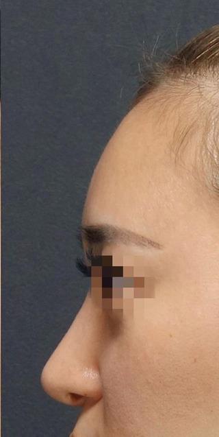 BIANCA銀座のSライン形成: 額 脂肪注入の症例写真(アフター)