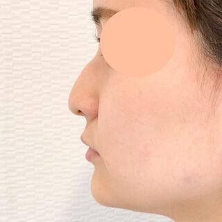 A CLINIC(エークリニック)銀座院の鼻根や鼻先を高くしたい方へ【ジャスミンノーズ】の症例写真(ビフォー)
