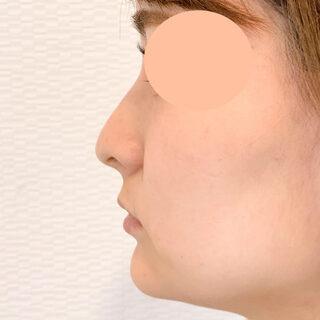 A CLINIC(エークリニック)銀座院の鼻根や鼻先を高くしたい方へ【ジャスミンノーズ】の症例写真(アフター)