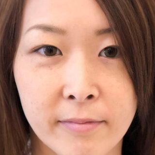A CLINIC(エークリニック)銀座院のメイク感覚で鼻を高くしたり鼻筋を通したい方に【ジャスミンノーズ】の症例写真(ビフォー)