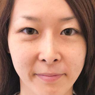 A CLINIC(エークリニック)銀座院のメイク感覚で鼻を高くしたり鼻筋を通したい方に【ジャスミンノーズ】の症例写真(アフター)
