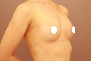 Mods Clinic(モッズクリニック)のコンデンスリッチ豊胸の症例写真(アフター)