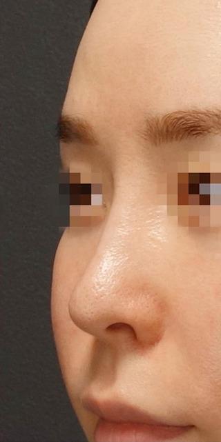 BIANCA銀座の鼻複合手術で自然に洗練させるの症例写真(アフター)