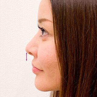 A CLINIC(エークリニック)銀座院の人中短縮で美人顔を手に入れる♪【ヒアルロン酸鼻中隔延長・人中短縮】の症例写真(アフター)