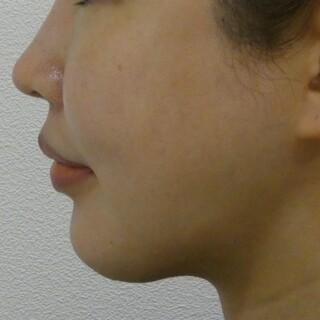 id美容クリニック銀座院の顎下脂肪吸引の症例写真(アフター)