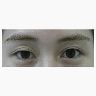 id美容クリニック銀座院のセブンロック埋没の症例写真(ビフォー)