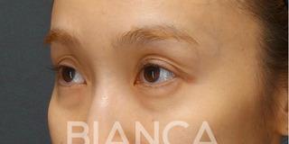 BIANCA銀座の目を美しくする治療の症例写真(ビフォー)