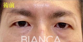 BIANCA銀座の男性のアンチエイジングの症例写真(ビフォー)