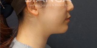BIANCA銀座の最新LIPO HIFUで二重顎撃退の症例写真(アフター)