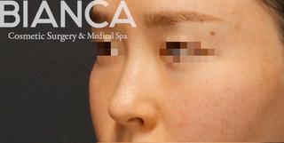 BIANCA銀座の鼻複合手術で自然に洗練させるの症例写真(ビフォー)