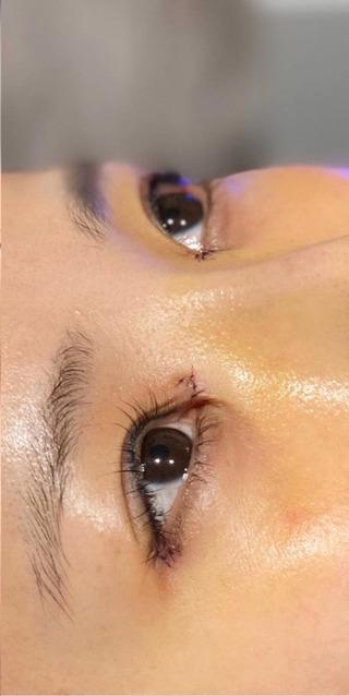 BIANCA銀座の目頭切開✖️目尻切開✖️鼻プロテーゼ の症例写真(アフター)