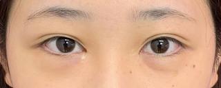 グローバルビューティークリニックの『 たるみ取り併用全切開法二重術 』『 GBC式韓流目頭切開 』『 下眼瞼下制術  (タレ目、グラマラスライン形成)』の症例写真(ビフォー)