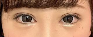 グローバルビューティークリニックの『 たるみ取り併用全切開法二重術 』『 GBC式韓流目頭切開 』『 下眼瞼下制術  (タレ目、グラマラスライン形成)』の症例写真(アフター)