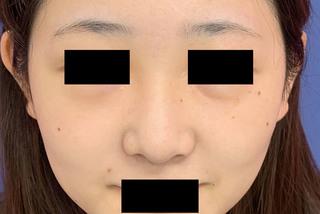 グローバルビューティークリニックの『 鼻尖形成術 』『 鼻尖部軟骨移植 』『 鼻翼縮小術 』の症例写真(ビフォー)