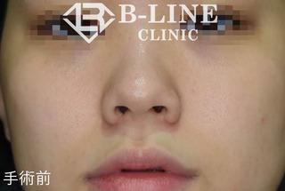 B-LINE CLINICの【他院修正小鼻縮小術+鼻尖形成術】の症例写真(ビフォー)