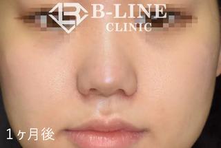 B-LINE CLINICの【他院修正小鼻縮小術+鼻尖形成術】の症例写真(アフター)