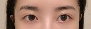 アイウェル整形外科の自然癒着、目頭切開、目尻切開の症例写真(ビフォー)