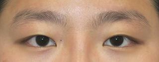 銀座S美容・形成外科クリニックの目力アップ+マイクロ脱脂+埋没法の症例写真(ビフォー)