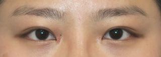 銀座S美容・形成外科クリニックの目力アップ+マイクロ脱脂+埋没法の症例写真(アフター)