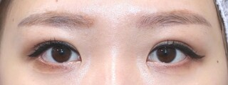 銀座S美容・形成外科クリニックの眼瞼下垂手術の症例写真(アフター)