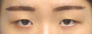 銀座S美容・形成外科クリニックの眼瞼下垂手術の症例写真(ビフォー)