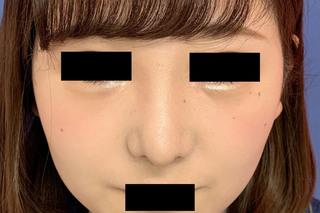グローバルビューティークリニックの『 鼻尖形成術 』『 鼻尖部軟骨移植 』『 鼻翼縮小術 』の症例写真(アフター)