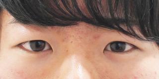 東京イセアクリニック銀座院の埋没法プレミアムの症例写真(ビフォー)