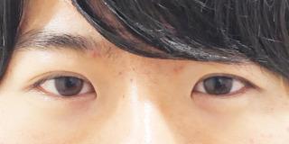 東京イセアクリニック銀座院の埋没法プレミアムの症例写真(アフター)