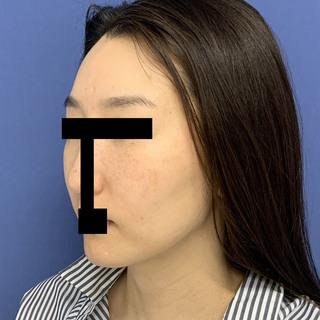 グローバルビューティークリニックの秘密の美肌小顔リフトの症例写真(ビフォー)