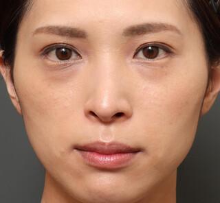 オザキクリニックLUXE新宿の3Dリポアイリフト (オプション:プレミアム脂肪注入)の症例写真(ビフォー)