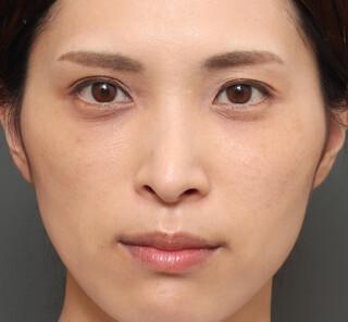 オザキクリニックLUXE新宿の3Dリポアイリフト (オプション:プレミアム脂肪注入)の症例写真(アフター)