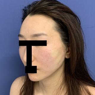 グローバルビューティークリニックの秘密の美肌小顔リフトの症例写真(アフター)