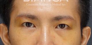 BIANCA銀座の男性のアンチエイジングの症例写真(アフター)
