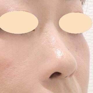 A CLINIC(エークリニック)銀座院のあなたに合った理想の鼻に!鼻根~鼻先までのヒアルロン酸注入【ジャスミンノーズ】の症例写真(ビフォー)