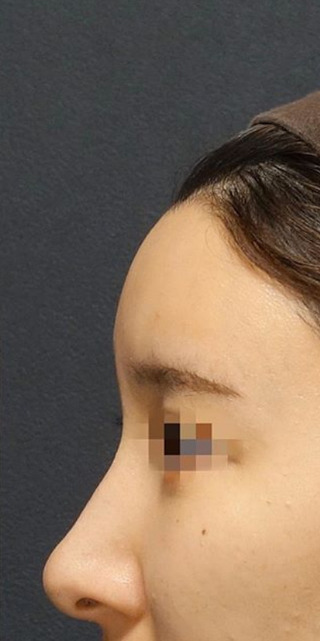 BIANCA銀座の脂肪注入でSライン形成の症例写真(アフター)