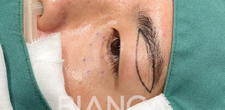 BIANCA銀座の男性の眉下切開の症例写真(ビフォー)