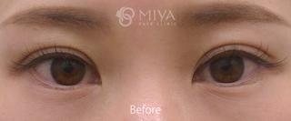MIYAフェイスクリニックの涙袋形成 ※ヒアルロン酸注入法の症例写真(ビフォー)