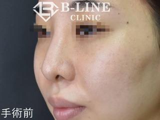 B-LINE CLINICの【鼻プロテーゼ・鼻中隔延長・鼻尖形成・耳介軟骨移植・鼻ヒアルロン酸溶解】 手術1週間後の症例写真(ビフォー)