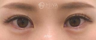 MIYAフェイスクリニックの涙袋形成 ※ヒアルロン酸注入法の症例写真(アフター)