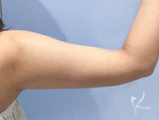 恵聖会クリニック心斎橋院の脂肪吸引 上腕(二の腕)の症例写真(アフター)