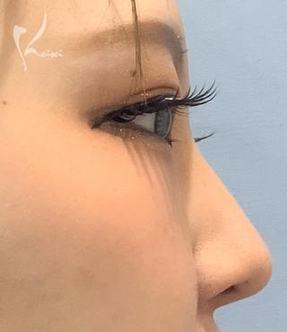恵聖会クリニック心斎橋院の鼻のヒアルロン酸注入の症例写真(ビフォー)
