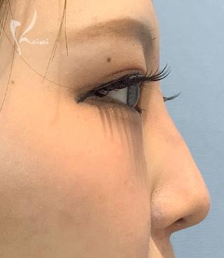 恵聖会クリニック心斎橋院の鼻のヒアルロン酸注入の症例写真(アフター)
