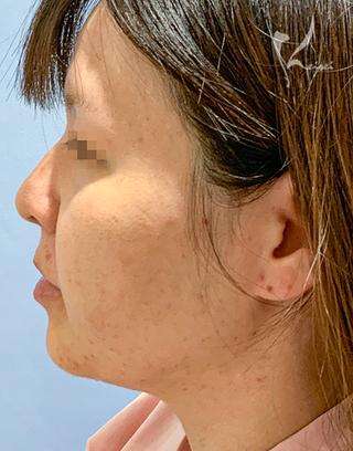 恵聖会クリニック心斎橋院の脂肪吸引 ホホ・アゴの症例写真(ビフォー)