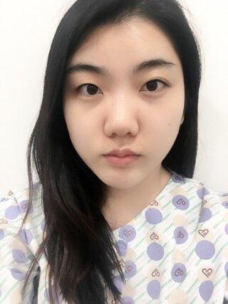 ラボム整形外科の自然癒着(埋没+部分切開)+目頭切開の症例写真(ビフォー)